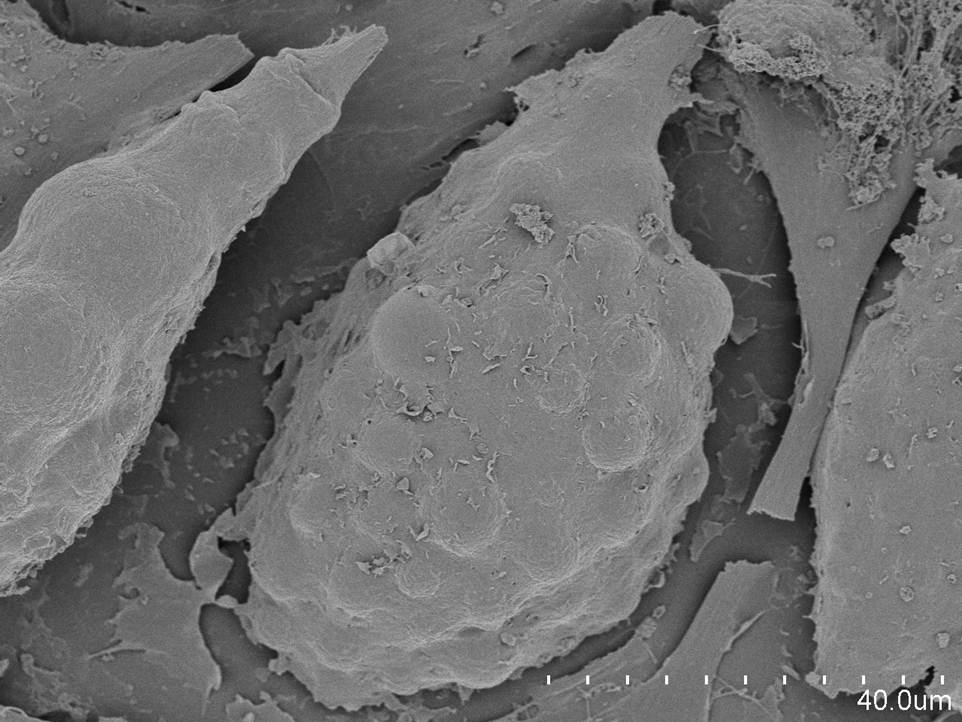 Scanning Electron Microscopy Images