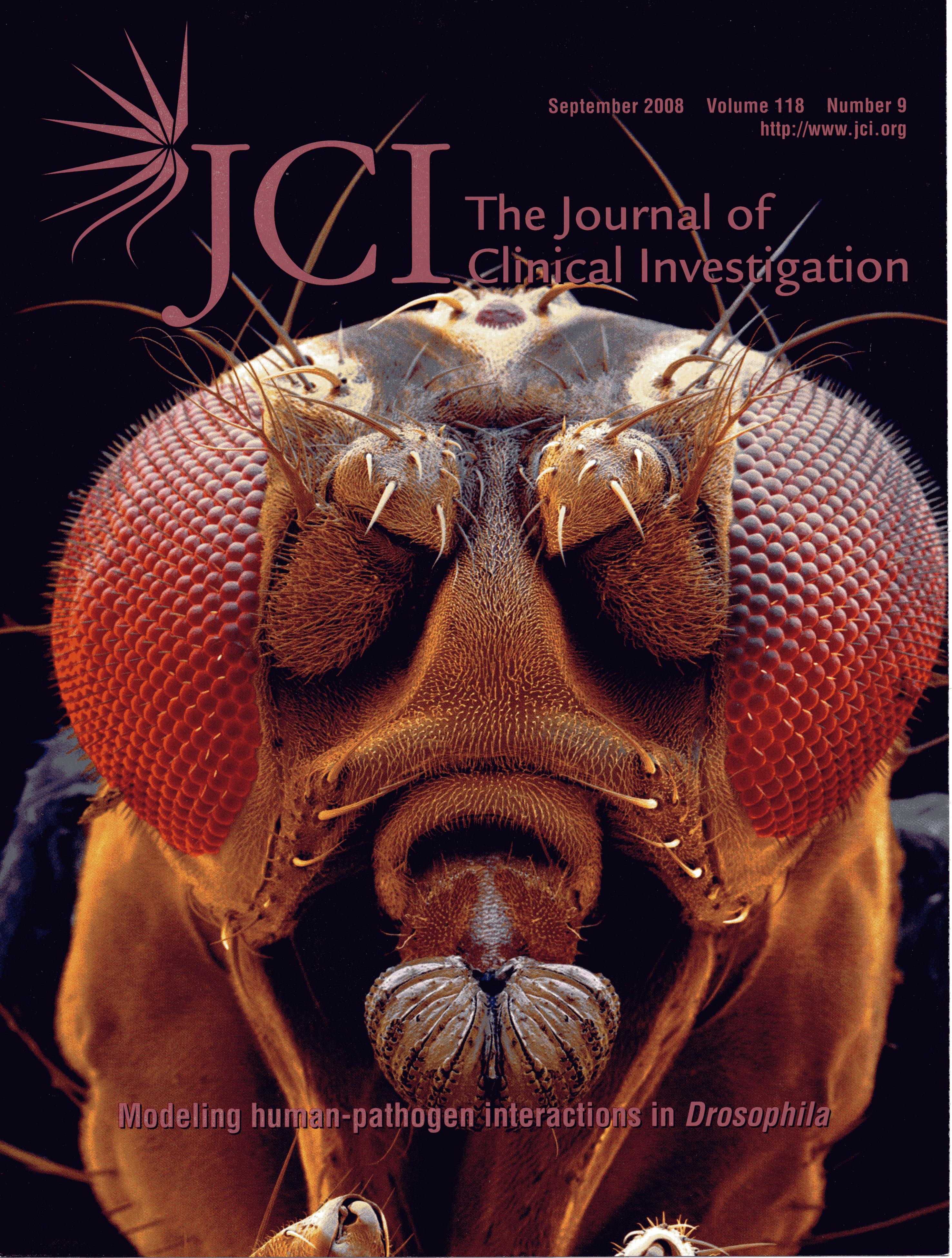 Modeling Human-Pathogen Interactions in Drosophila